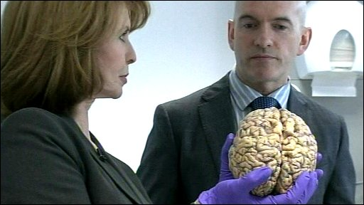 Jane Asher holding a brain at the Parkinson's Brain Bank