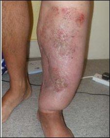 Steve Marple's legs