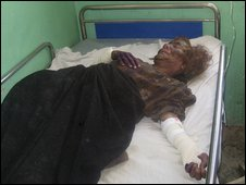 An injured woman lies in hospital in Farah, Afghanistan (5 May 2009)