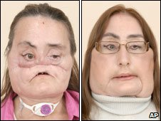 This is a photo of Connie Culp, after an injury to her face, left, and then as she appears now after the operation