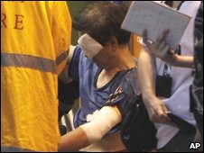 A man is treated for acid burns in Hong Kong, May 16, 2009