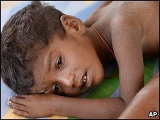 Sick child in Manik Farm displaced persons camp