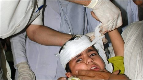 A child injured in the Lahore blast receives medical treatment