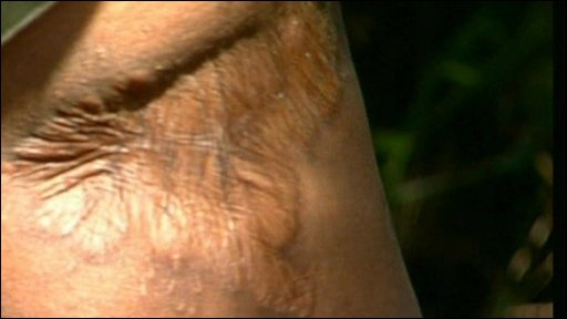 Scar on the leg of a man who was attacked by a hippo