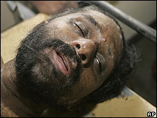Poddala Jayantha lies on a stretcher at a hospital in Colombo, Sri Lanka, on 1/6/09
