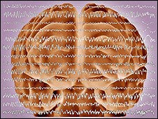 Brain and brainwaves during an epileptic fit