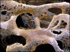 Osteoporosis.Pic:Prof P Motta/Dept of Anatomy/University 'la Sapienza, Rome/SPL