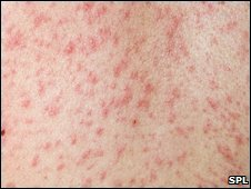 Measles rash on woman's back