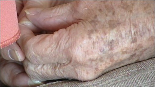 bbc news health new test for alzheimer 39 s disease. Black Bedroom Furniture Sets. Home Design Ideas