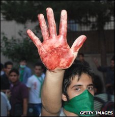 A protester holds up a bloody hand during an opposition rally in Tehran, 15 June 2009.