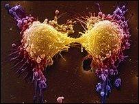 خلايا سرطانية في البروستاتا