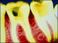 Tooth decay c/o BBC Science Photo Library
