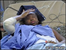 Yemen air crash survivor