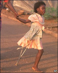 A girl in Sierra Leone who had her leg amputated by RUF rebels (2000)