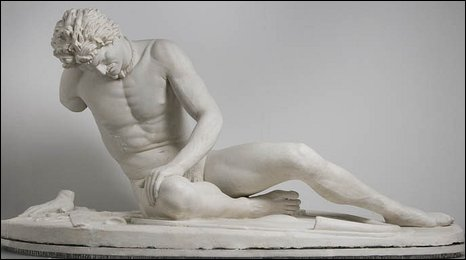 Image shows a sculpture of a man lying down with a large chunk of his arm missing
