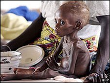 Young child suffering from severe malnutrition is treated at an MSF centre in Maradi