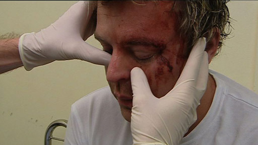 A victim of a drunken punch