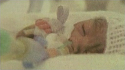 The premature baby initially thought to be dead