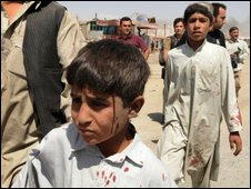 Afghan children, slightly injured in a suicide attack, leave the site of the blast in Kabul on 18 August 2009