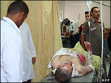 Injured man in hospital in Kut following the bus blasts on 24/08/09