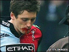 Quins winger Tom Williams walks off with fake blood pouring from his mouth