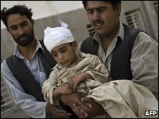Child wounded in a Kabul suicide blast in August 2009