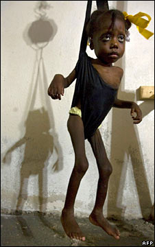 Malnourished girl in Haiti