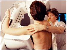 Mammogram (generic)
