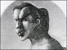 Joseph Merrick:Pic caption:US National Library of Medicine/SPL