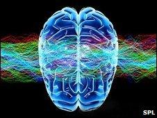 Brain artwork (SPL)
