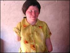mariam an albino in Tanzania 
