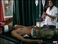 A wounded Iraqi soldier in hospital in Kirkuk