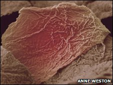 Skin cells from burn