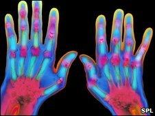 Coloured X-ray of hands suffering from severe rheumatoid arthritis