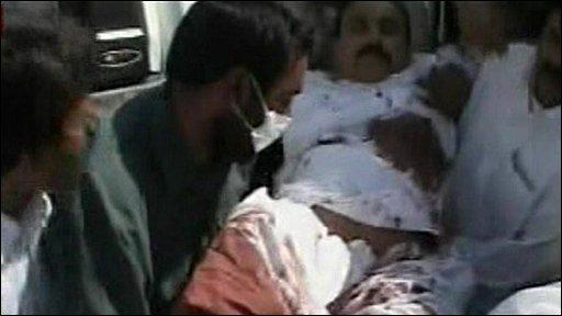 Iranian bombing victim