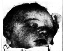Daily Mail picture of David Stevenson when found as a baby