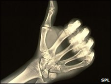 x-ray of the hand