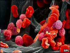 Leukaemia blood cells