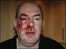John Guest after he was attacked