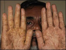 A Bangladeshi farmer Abdul Haq, holds his hands up to show the affects of arsenic poisoning, at a community hospital specializing in Arsenic related treatments, in Dhaka, Bangladesh, Oct 2009