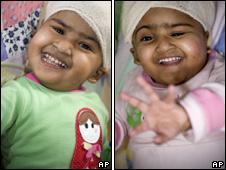 Conjoined twins Trishna and Krishna