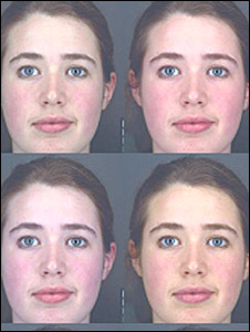 The skin portions of the images on the right look healthier