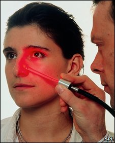 Photodynamic therapy (SPL)