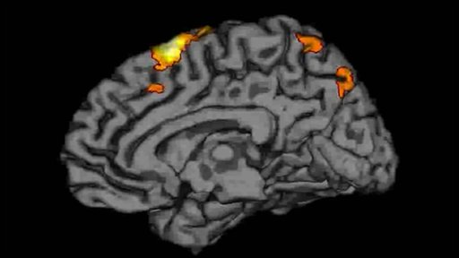 Brain scan of Fiona Shaw's right brain during performance