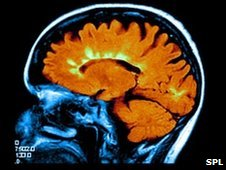 Brain scan of MS
