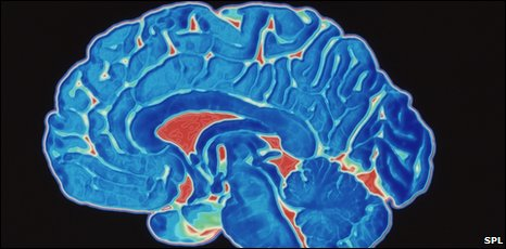Coloured CT scan of a healthy brain