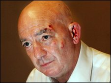 <b>Jim McDowell</b> suffered face injuries in the attack (pic: Irish News) - _46807104_jimmcdowell01