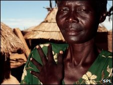 African woman with HIV