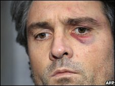 French surgeon Stephane Delajoux leaves hospital in Paris, 12 December