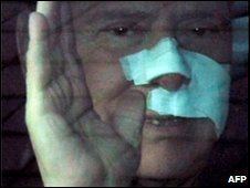 Silvio Berlusconi with bandages on his face, seen through a car window, as he leaves a Milan hospital
